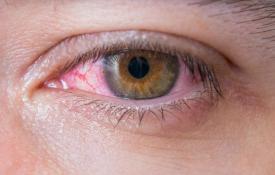 Kebiasaan Pemicu Kanker Mata